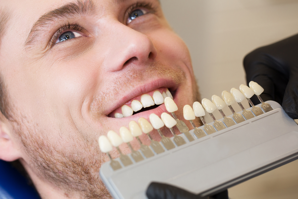 Teeth Whitening Colour Matching